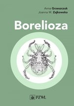 Borelioza – ebook